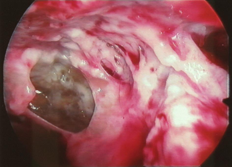 Peroperační snímek třetího stadia empyému (VTS)