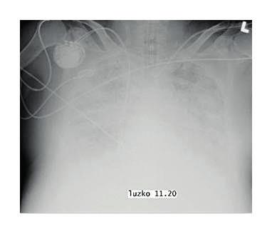 Zadopřední snímek hrudníku pacienta s ARDS