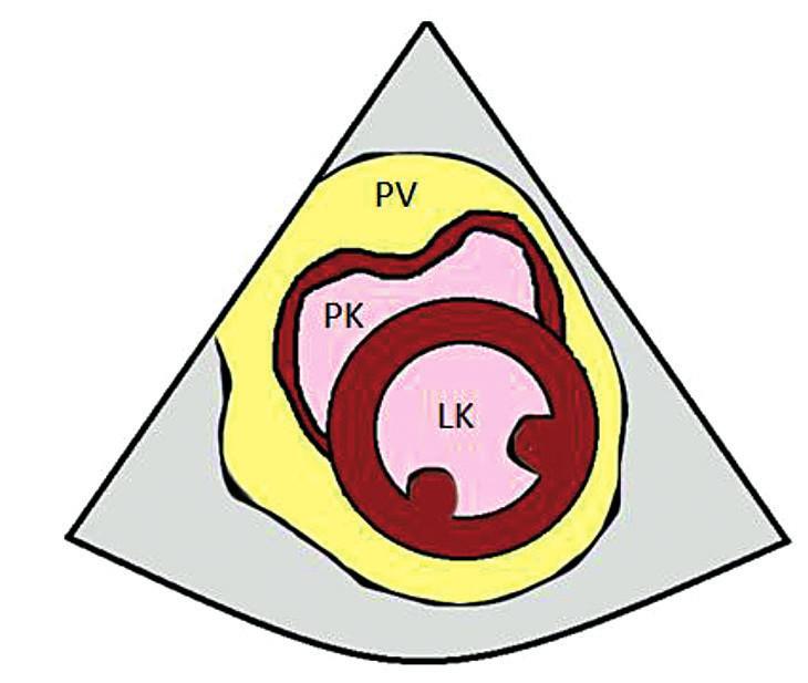 PSAX – parasternální projekce na krátkou osu – kolaps PK