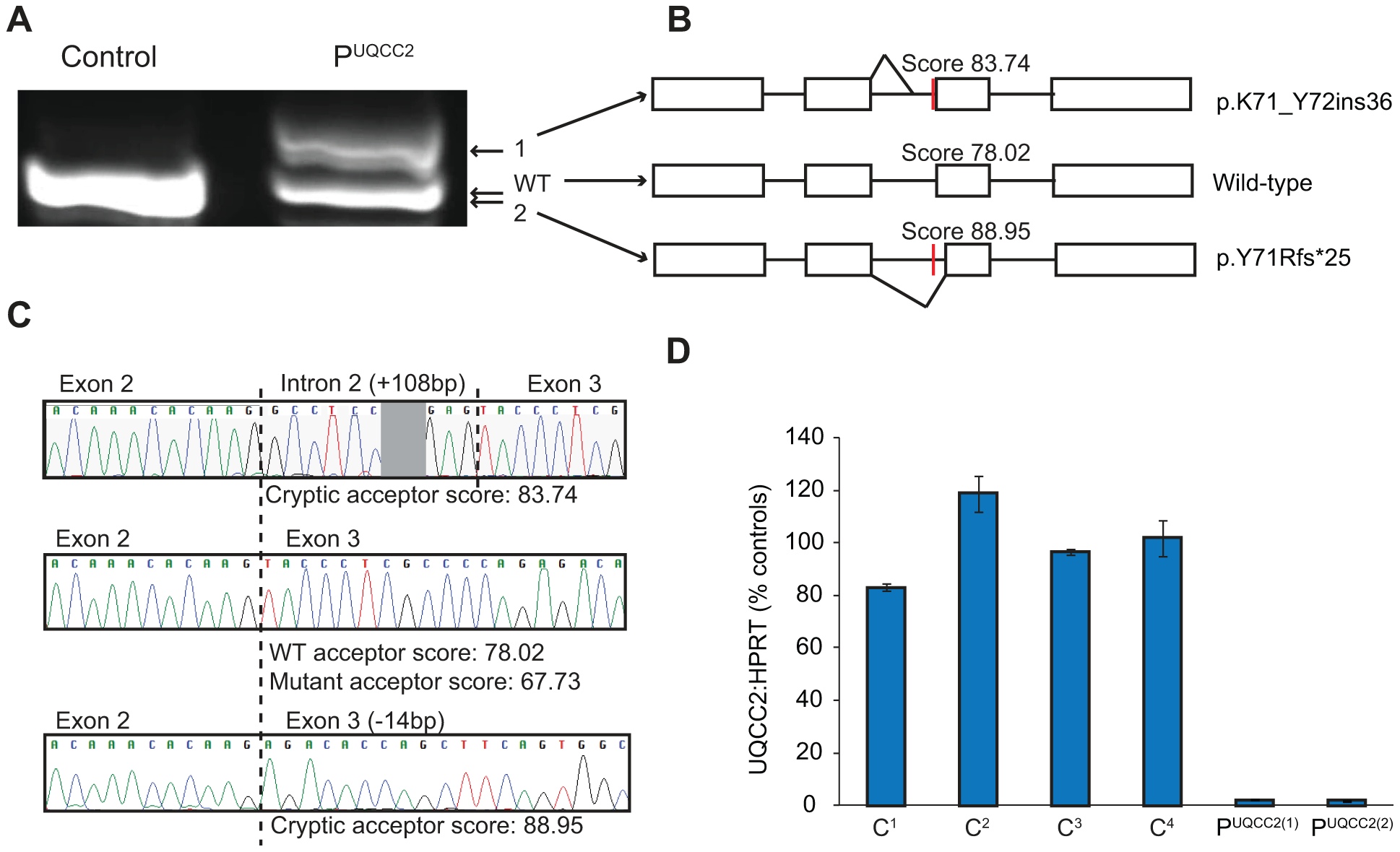 The c.214-3C&gt;G mutation causes a severe <i>UQCC2</i> splicing defect.