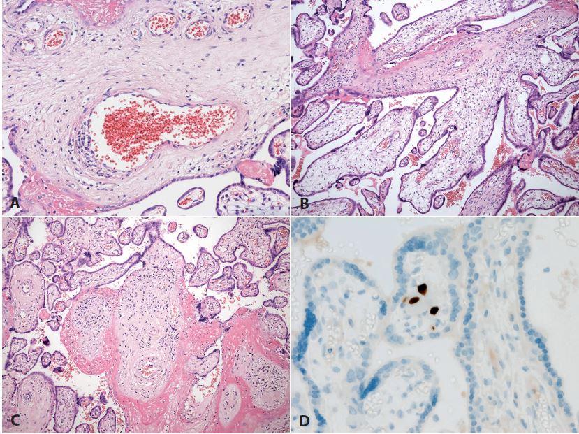 <b>Vilitida</b>. Placenta ze 36. týdne gravidity, vrozená cytomegalovirová infekce plodu (plod vitální, dle klin. údajů těžce postižený). <b>A</b>: postižení cévních struktur zánětem (HE, zvětš. 200x). <b>B, C</b>: různá intenzita zánětlivých změn klků, v <b>C</b> již fibrotizace (HE, zvětš. 100x). D: imunohistochemický průkaz cytomegaloviru (zvětš. 400x).