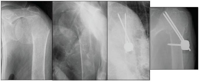Osteosyntéza podle Resche u 83leté pacientky s dislokovanou zlomeninou horního konce pažní kosti