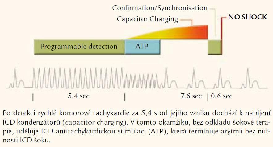 Udělení ATP u rychlé komorové arytmie – funkce firmy Medtronic.