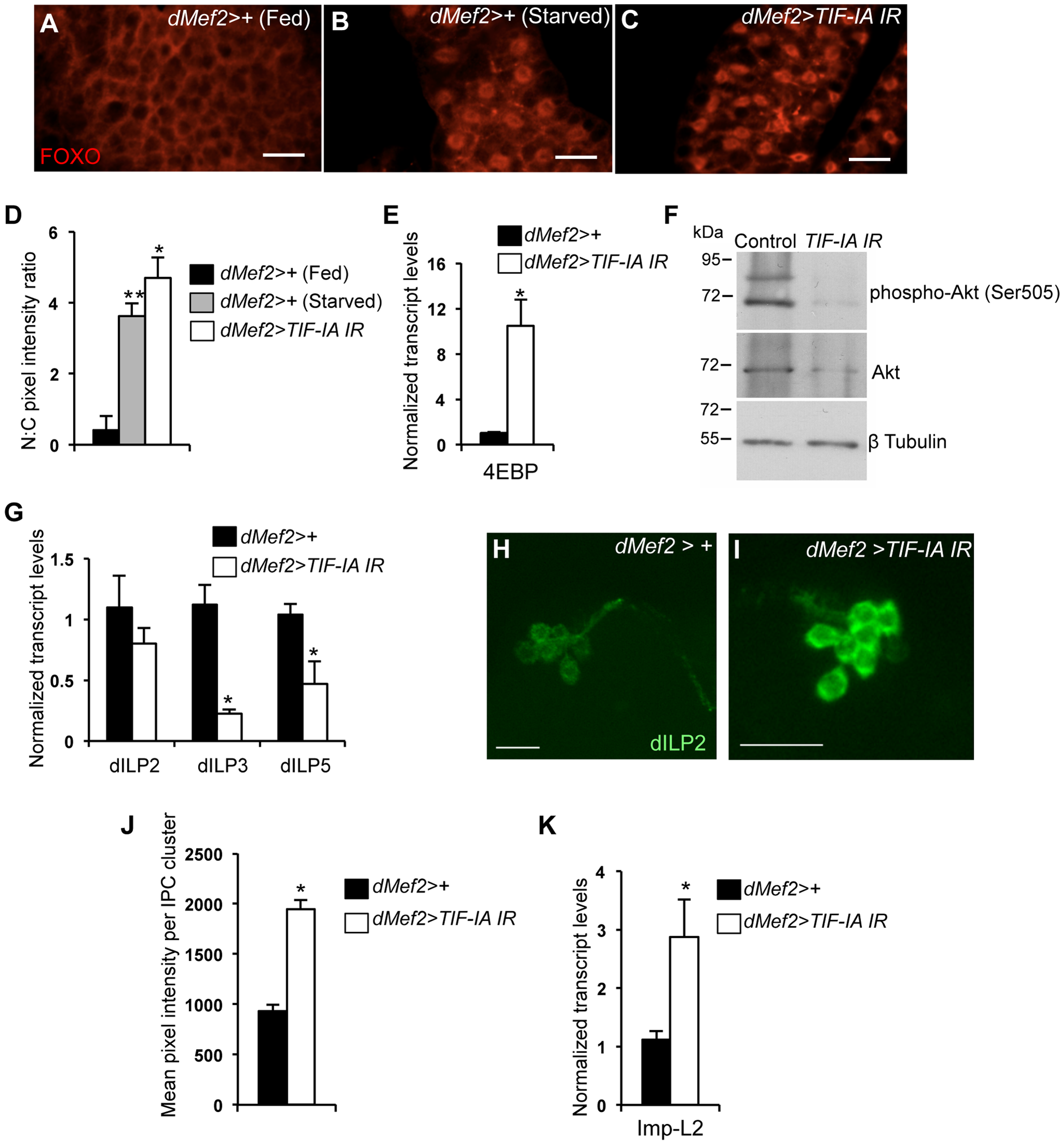 Muscle-specific TIF-IA inhibition reduces systemic insulin signaling.