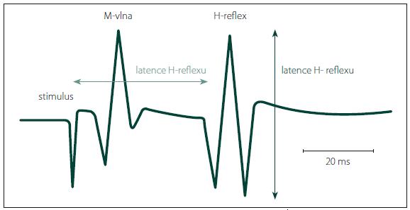 Latence se měří od začátku stimulu k první pozitivní odchylce křivky H-reflexu od základní linie, ne od začátku první negativity. Fig. 2. The latency is measured from the beginning of the stimulus until the first deviation of the H-reflex curve from the base line, not from the start of the first negativity.