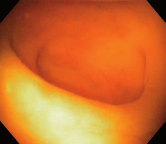 Ústí appendixu ve vodní imerzi. Fig. 2. Appendiceal orifice in water immersion.