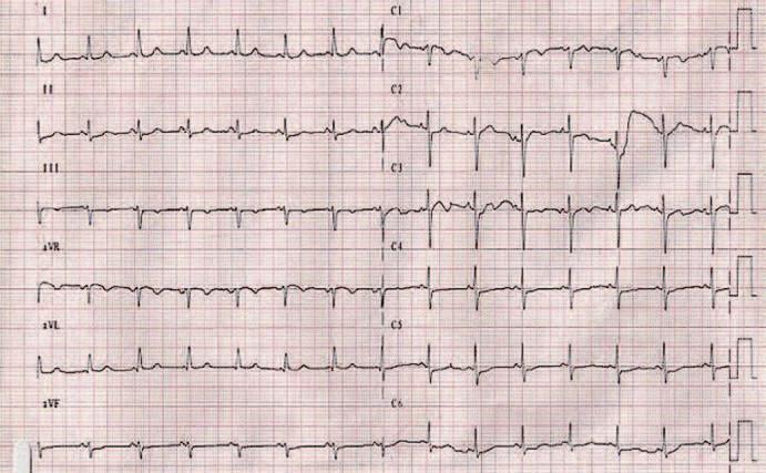 EKG záznam 5 dní po liečbe.