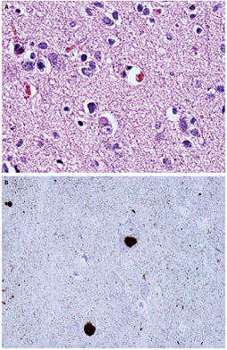 Lewyho telieska vo frontálnom kortexe v rutinnom farbení hematoxylínom-eosinom (A) a imunohistochemickom farbení alfa-synukleinom (B). Fig. 2. Lewy bodies in the frontal cortex under routine hematoxylin and eosin staining (A) and immunohistochemical staining with alpha-synuclein (B).