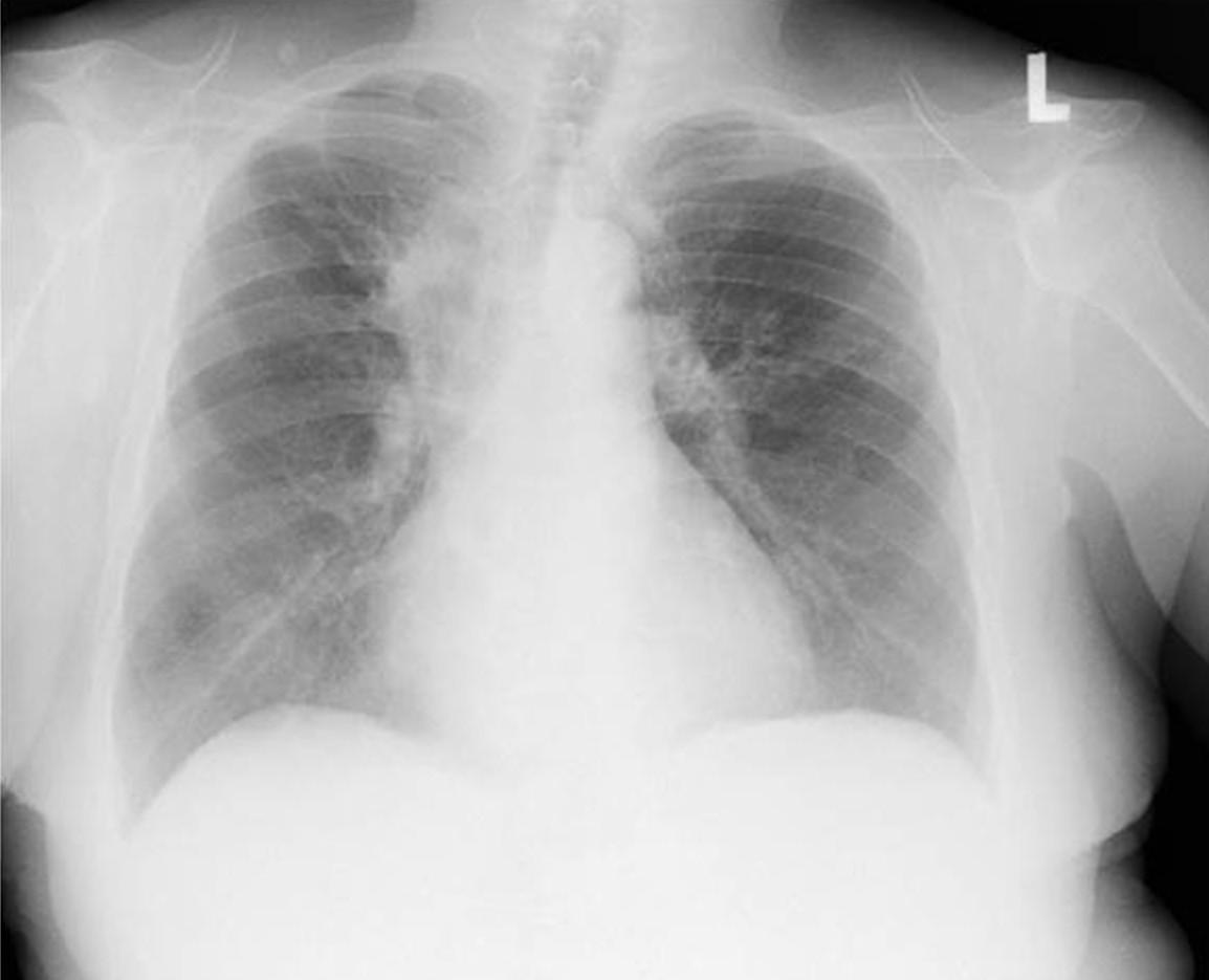 Zadopřední skiagram hrudníku nemocné s bronchiektáziemi při alergické bronchopulmonální aspergilóze