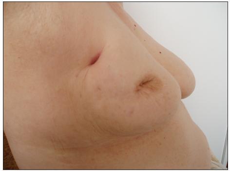 Exulcerovaný tumor Fig. 5. Exulcerated tumor