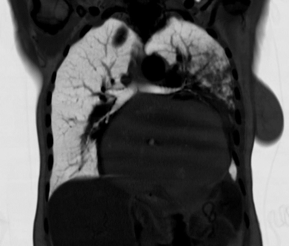 Frontální snímek CT (negativ) Fig. 11: Frontal CT image (inverse)