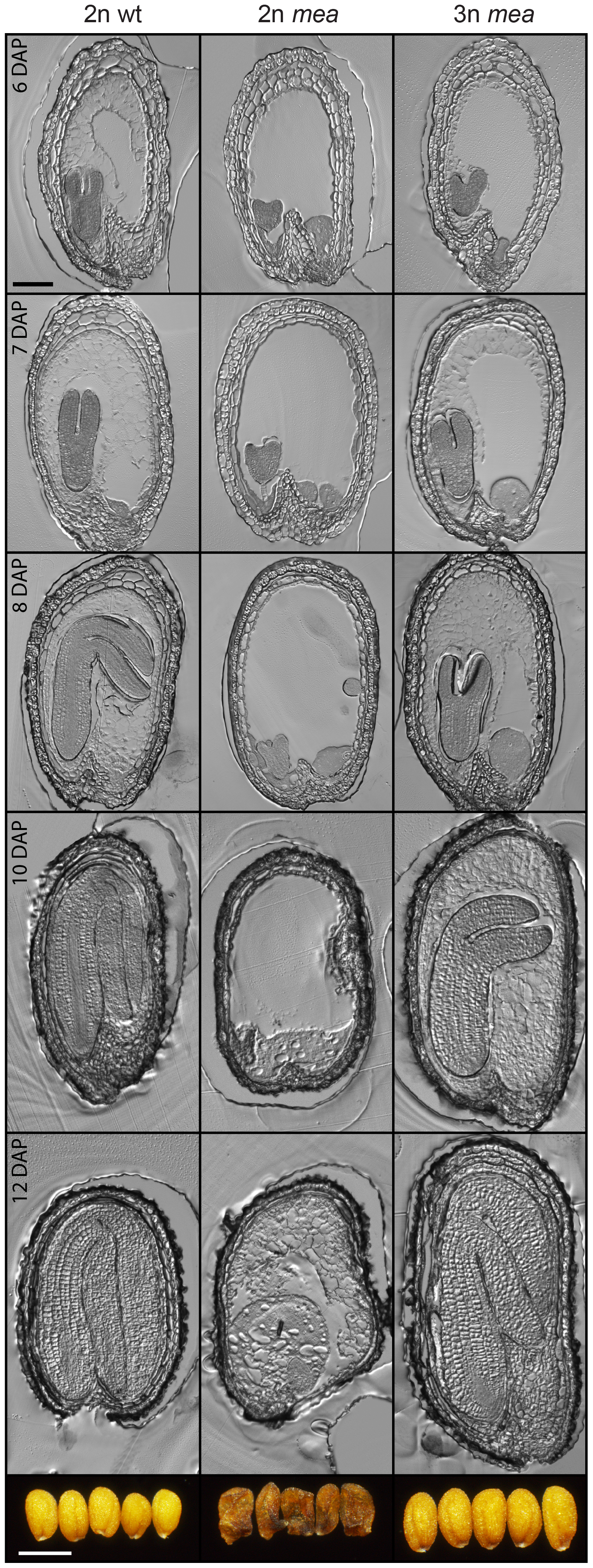 Endosperm Cellularization Is Restored in Triploid <i>mea</i> Seeds.