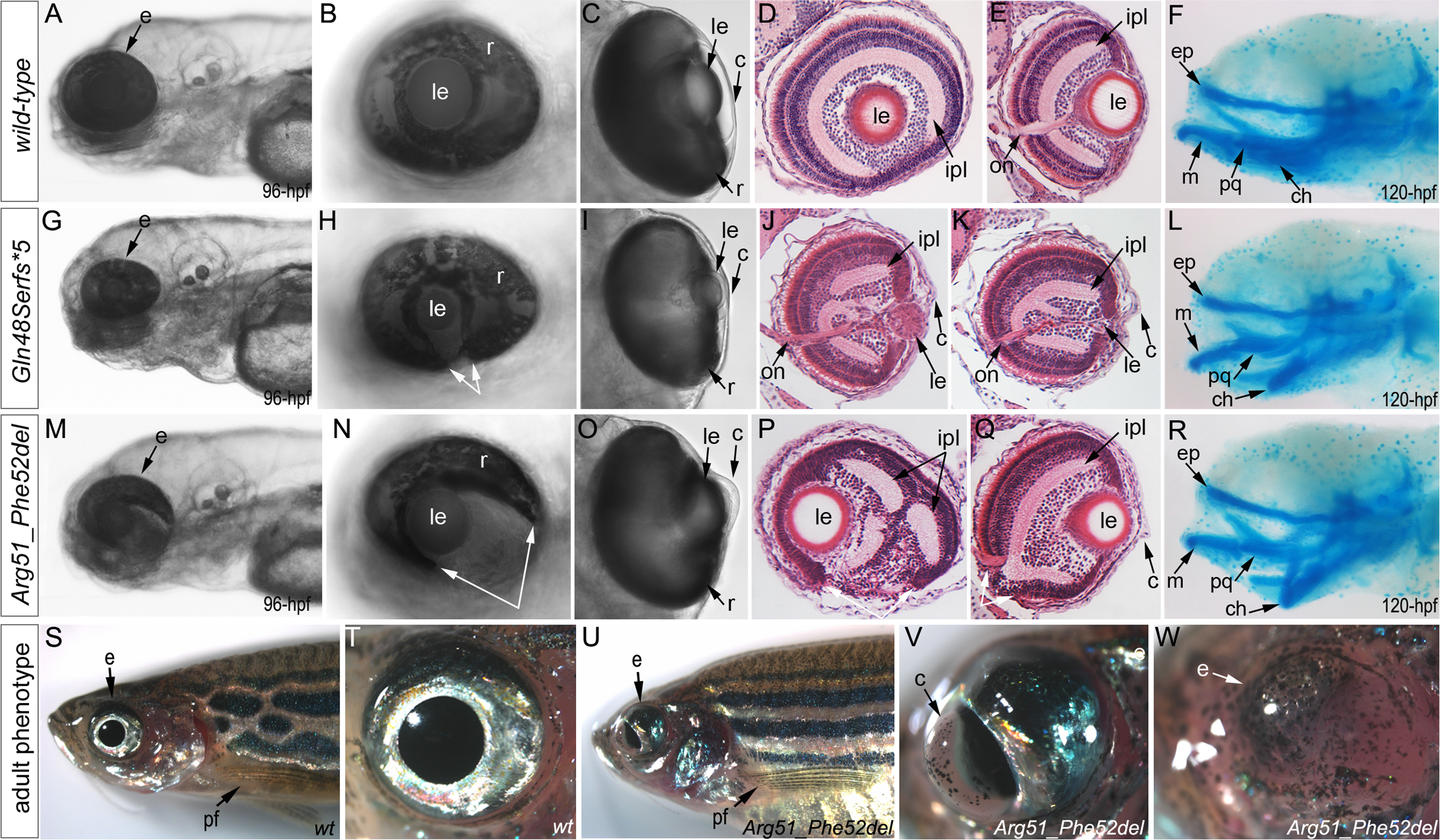 Phenotypic analysis of homozygous embryos carrying mutant <i>mab21l2</i> alleles encoding p.(Gln48Serfs*5) truncation (<i>mab21l2</i><sup>Q48Sfs*5</sup>) and p.(Arg51_Phe52del) in-frame deletion (<i>mab21l2</i><sup><i>R51_F52del</i></sup>) proteins.