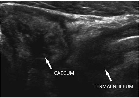 M. Crohn – chronické změny v oblasti ileocaeka. Fig. 4. M. Crohn – chronic changes in the ileo-caecal region.