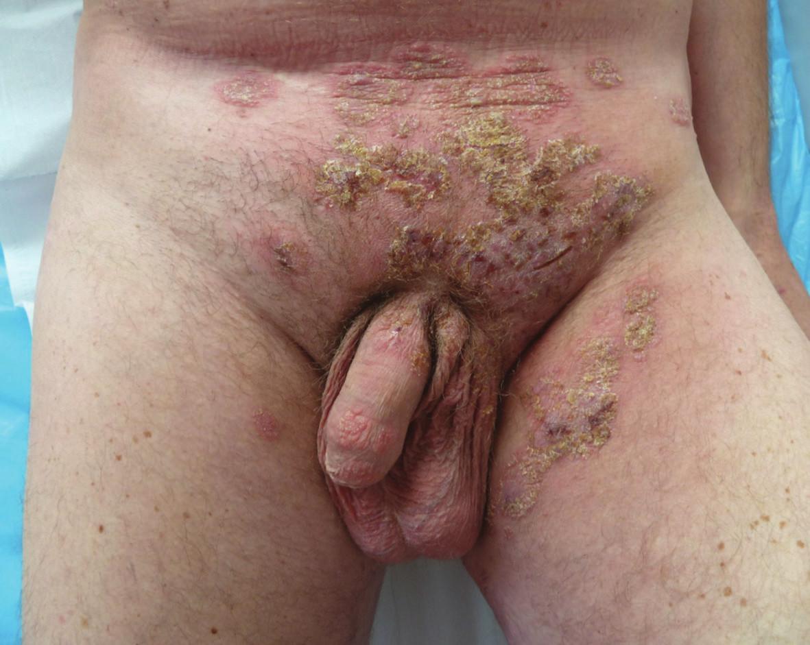 Polycyklická erytémová ložiska s periferními pustulami a nánosy hemoragických a medových krust