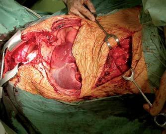 Kombinovaná transplantace srdce, jater a ledviny.