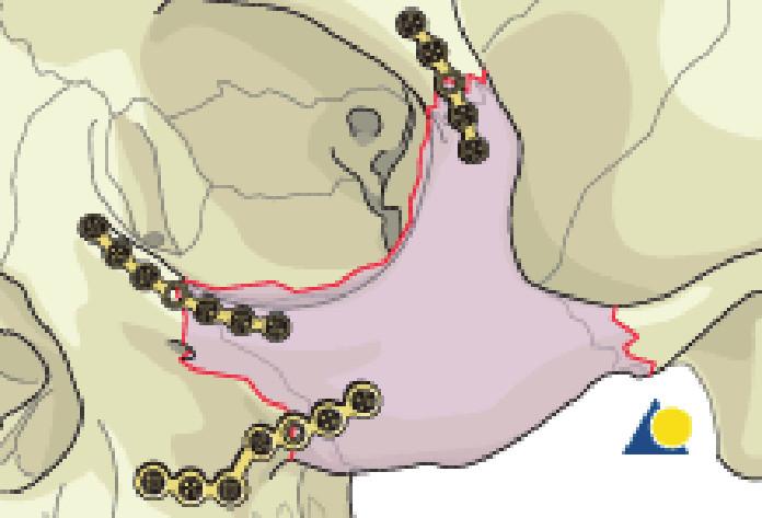Schéma dlahové osteosyntézy zlomeniny lícně-čelistního komplexu
