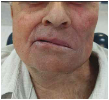 Výsledek operace (po 5 měsících)