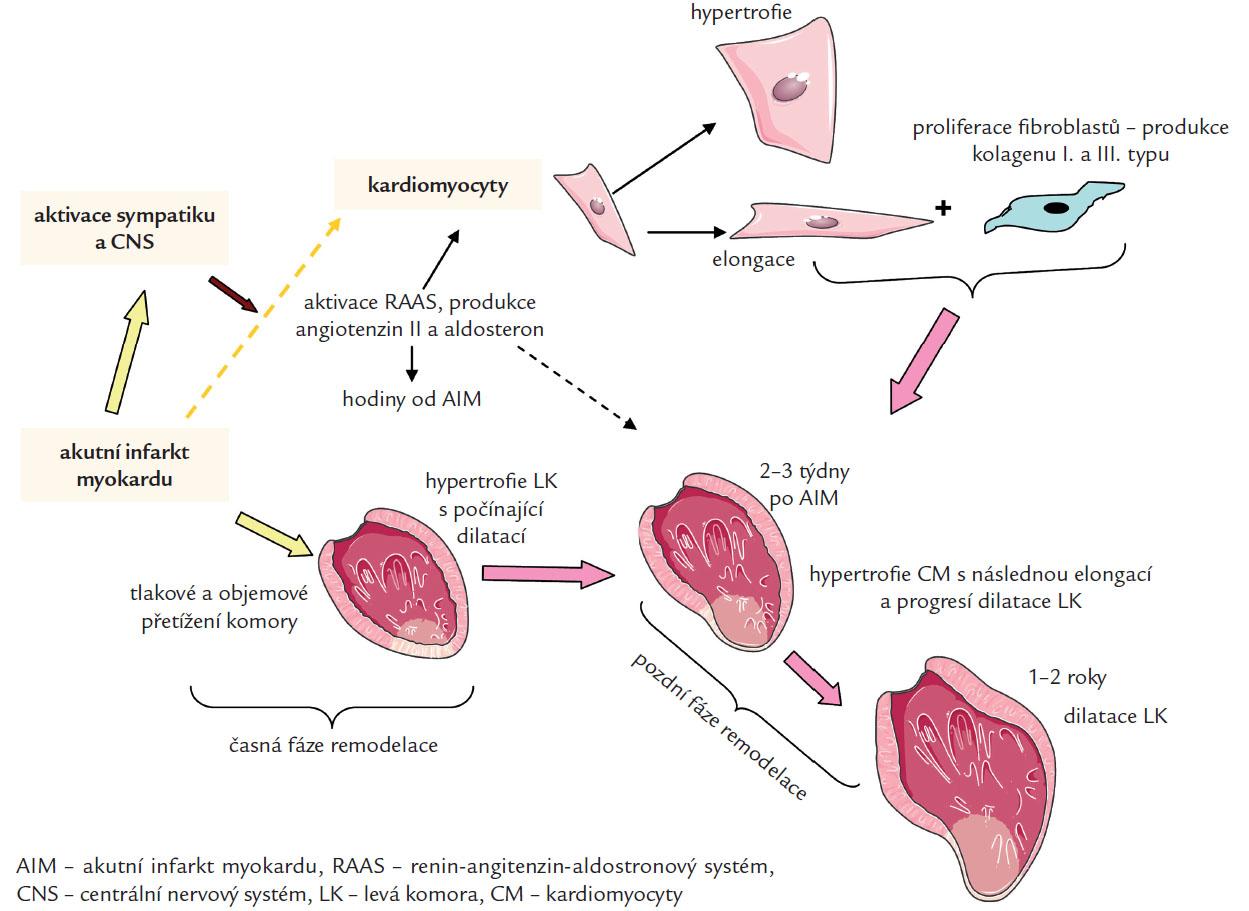 Patofyziologi  remodelace levé komory po AIM s rozvojem srdečního selhání. Částečně upraveno  podle [15].