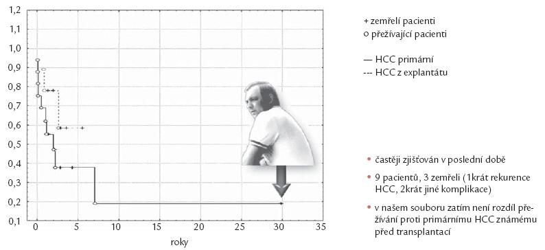 Hepatocelulární karcinom zjištěný z explantovaných cirhotických jater.