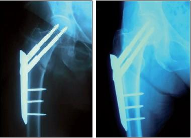 Osteosyntéza vlevo pertrochanterické a vpravo bazicervikální fraktury