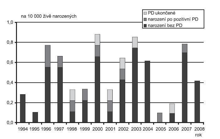 Incidence Atrioventrikulární diskordance (Q 20.5) v ČR, 1994 - 2008, Zdroj: Národní registr vrozených vad – ÚZIS, 2009