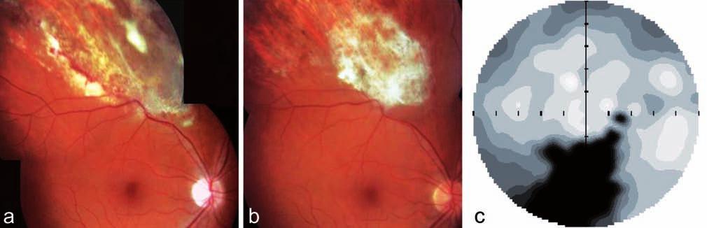 Klinický nález u pacienta z kazuistiky 2. Fotografie dokumentuje bělavá již resorbující se ložiska infiltrace a hemoragie s atrofizací sítnice v horním nazálním kvadrantu pravého oka u pacienta na celkové imunosupresi (Medrol + Cyklofosfamid) pro ulcerózní kolitidu a), klidná jizva pro proběhlé CMV retinitidě b), statická automatická perimetrie pravého oka s odpovídajícím výpadem v zorném poli c)