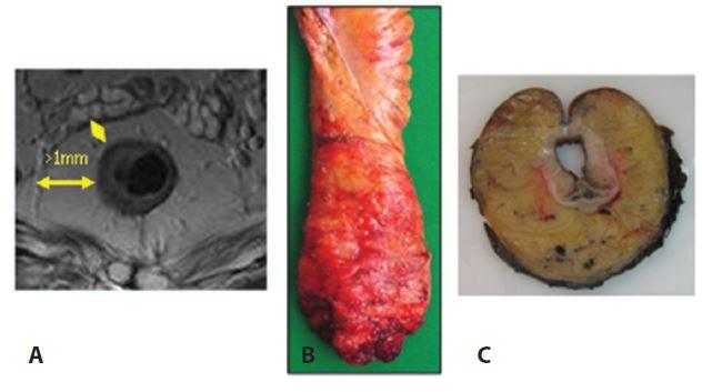 Negativní cirkulární resekční okraje v zobrazení MRI (A), resekát rekta s kompletní excizí mezorekta (B) a příčná lamela rekta v místě nádoru (C) Fig. 1: Negative circular resection margins based on MRI (A); rectal biopsy with complete mesorectal excision (B); and the transverse lamella of the rectum at the tumor site (C)