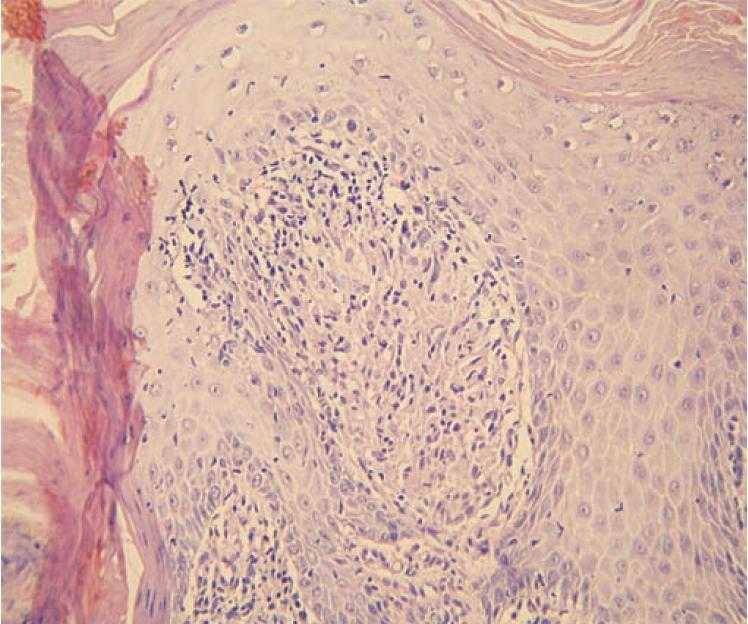 Detail dermální papily obsahující granulom z epiteloidních histiocytů bez centrální nekrózy, s malým lymfocytárním pláštěm, tedy ne zcela typický lupoidní granulom (hematoxylin-eosin, zvětšení 200krát)