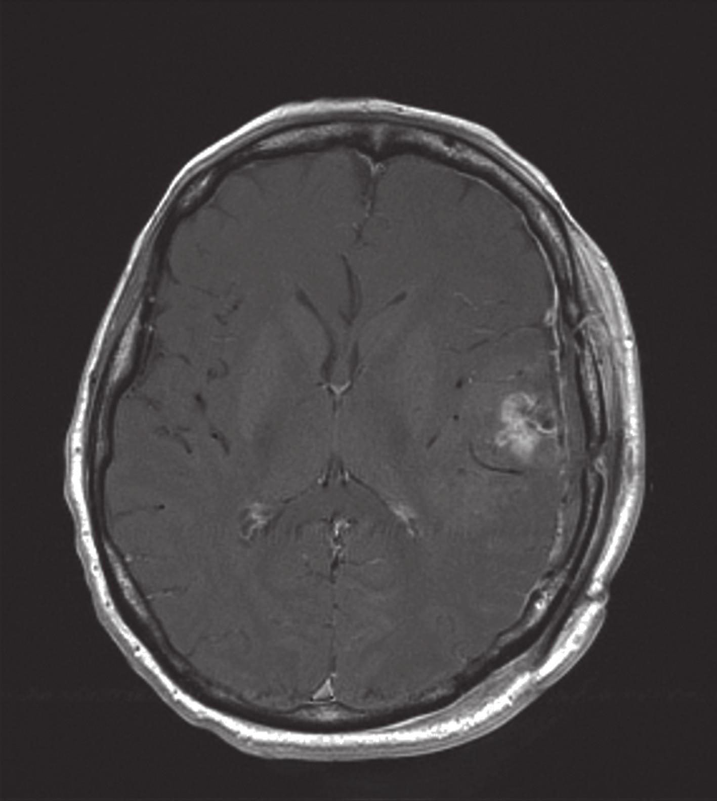 Po operační enhancující reziduum anaplastického oligodendrogliomu (MRI: T1 vážený obraz po podání gadolinia).