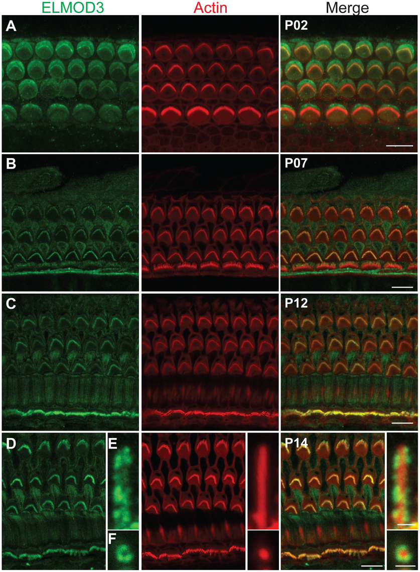 ELMOD3 is expressed in sensory cells of rat organ of Corti.