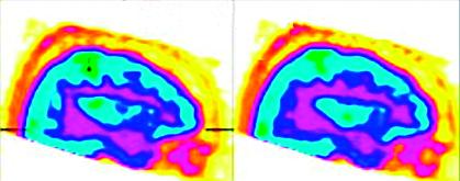 Obr. 2b Zobrazení cerebrálního metabolismu  pacientky s akinetickým mutismem pomocí PET-CT v sagitální rovině po podání zolpidemu: světle modrá barva značí výrazný vzestup aktivity v oblasti gyrus cinguli (volně podle [18])
