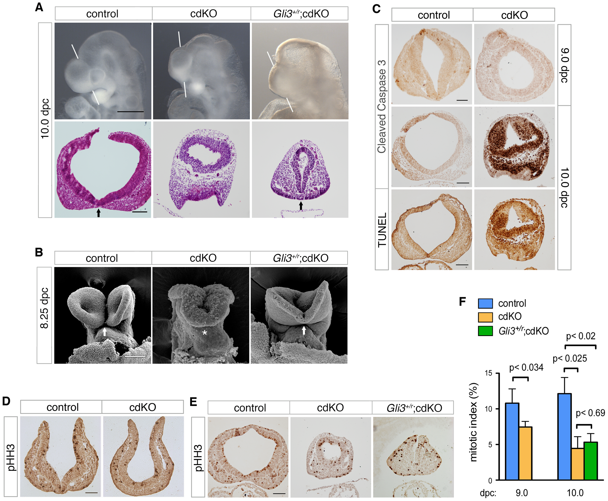 Rescued ventral forebrain structure in <i>Gli3</i> mutant cdKO embryos.