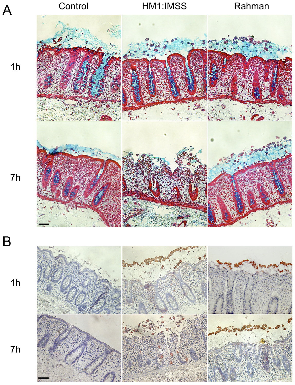 Human colon explants incubated with <i>E. histolytica</i> HM1:IMSS or Rahman trophozoites.
