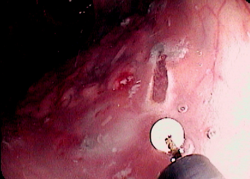 Endoscopická submukózní disekce: Řez diatermickým nožem Pic. 6. Endoscopic submucosal dissection: The cut with diathermic knife