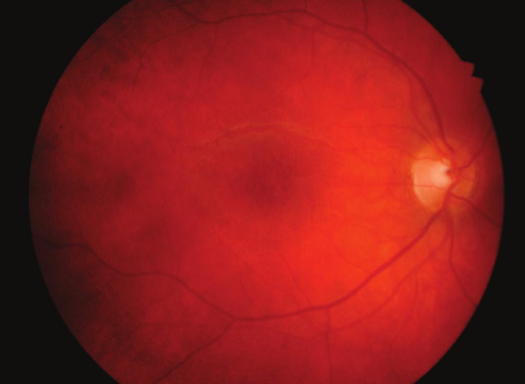 Téměř úplná resorpce hvězdicové makulopatie pravého oka 2 měsíce po léčbě
