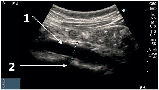 Podélné (longitudinální) zobrazení střední břišní aorty
