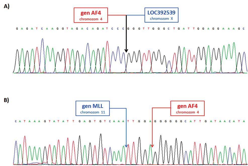 Sekvence LR-PCR produktů A) derivovaný chromozom 4; fúze genu AF4 (intron 5) a pseudogenu LOC392539 na chromozomu X. B) derivovaný chromozom 11; fúze genů MLL (intron 9) a AF4 (intron 5).