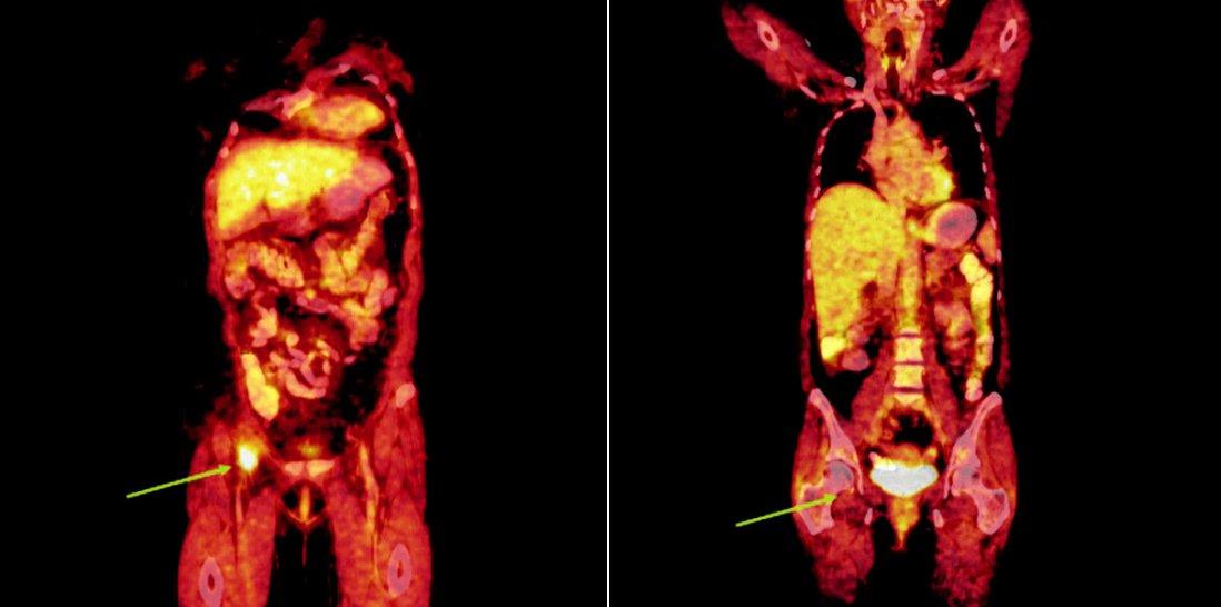 Srovnání snímků integrované pozitronové emisní tomografie (s použitím 18F-fluoro-deoxy-glukózy) a počítačové tomografie při relapsu (a) a po skončení léčby 90Y-ibritumomab tiuxetanem (b) u druhého pacienta s folikulárním lymfomem.