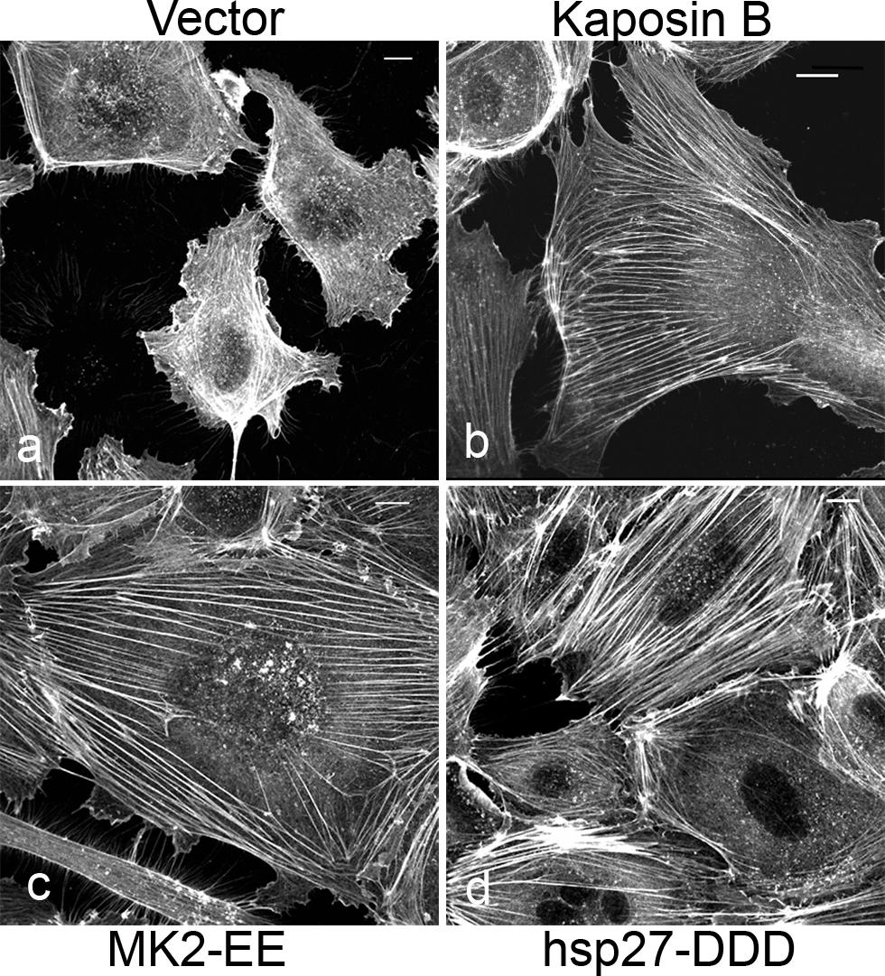 KapB promotes actin stress fiber formation in human umbilical vein endothelial cells.