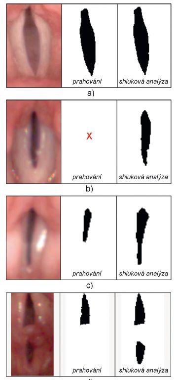 Porovnání detekce štěrbiny metodou prahování Max- Min-Thresholding a metodou shlukové analýzy.