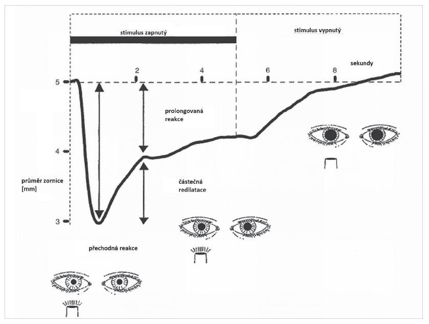 Pupilografický záznam pupilární reakce na jasný, bílý, světelný stimulus o délce 5 sekund u zdravého člověka. Pupilární reakce se skládá ze dvou fází. Po zapnutí stimulu dochází k rychlé, maximální pupilární konstrikci s krátkou latencí (přechodná fáze pupilární reakce na osvit). Poté se zornice poněkud rozšíří (částečná redilatace) do stadia částečného zúžení zornice, které reprezentuje prolongovanou fázi pupilární reakce na osvit a přetrvává i po vypnutí stimulu. (Modifikováno podle reference 16)