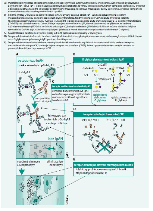 Schéma 2. Hypotetické schéma patogeneze IgA nefropatie a možnosti kauzální terapie