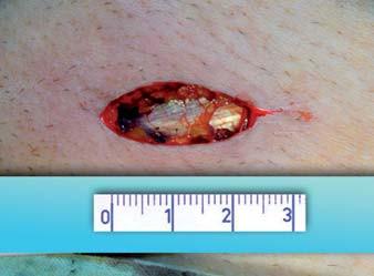 Délka operační rány.