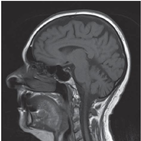 MR mozku se zachycenou atrofií mozku a mozečku.