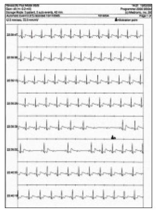 Synkopa pri náhle vzniknutej AV blokáde a súčasnom poklese pulzovej frekvencie (ISSUE IB).