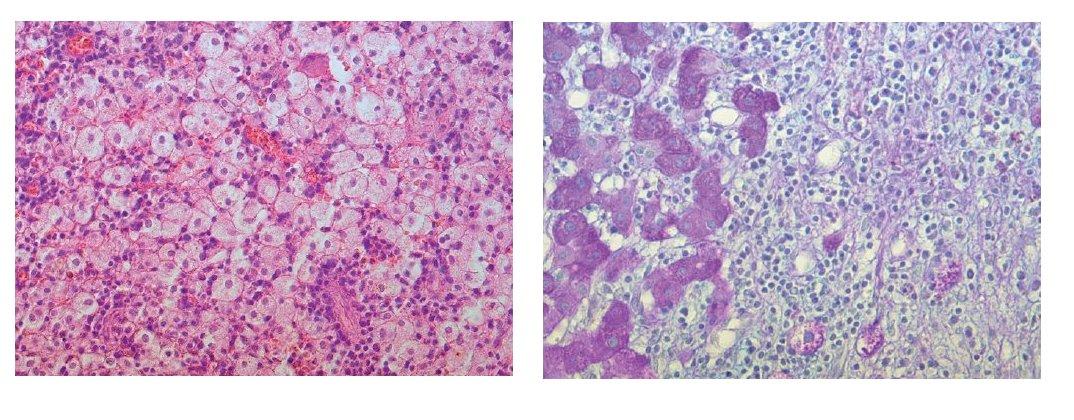 a) Mikroskopický obraz excize ložiska jater – úsek z centra ložiska, pěnité makrofágy a zánětlivá celulizace jsou korelátem resorbujícího se hnisání. Barvení HE, zvětšení objektiv 20x. b) Mikroskopický obraz excize ložiska jater – okraj ložiska tvořený vazivem se zánětlivou celulizací a navazující jaterní tkáň. Barvení PAS, zvětšení objektiv 40x