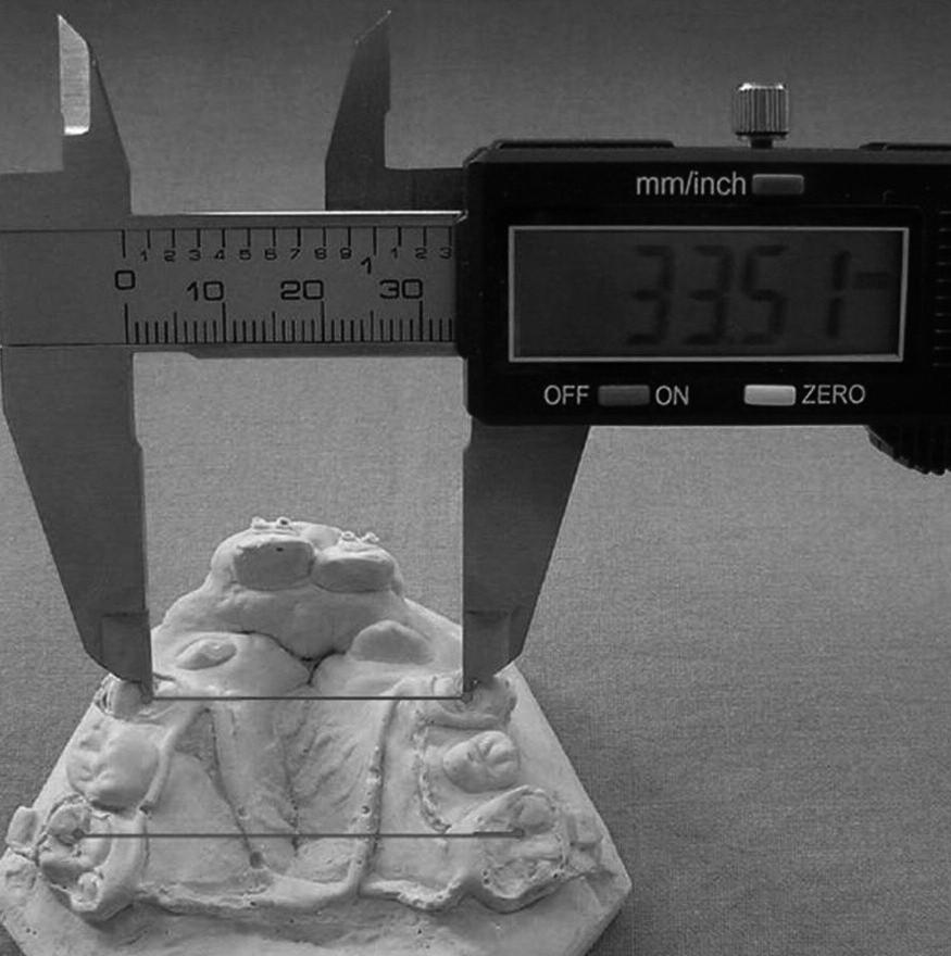 Měření šířky horního zubního oblouku v místě prvních premolárů a prvních molárů digitálním caliperem.