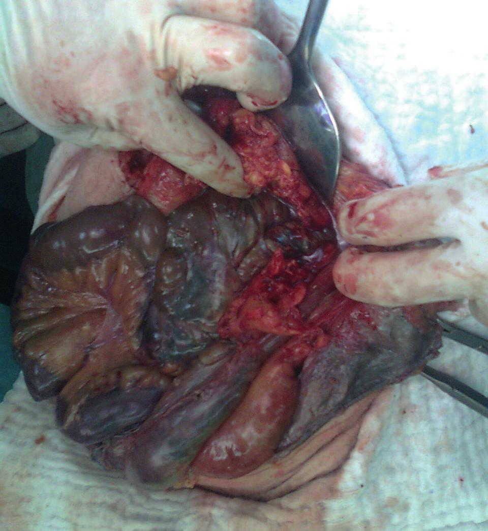 Operační foto Fig. 5: Surgical picture