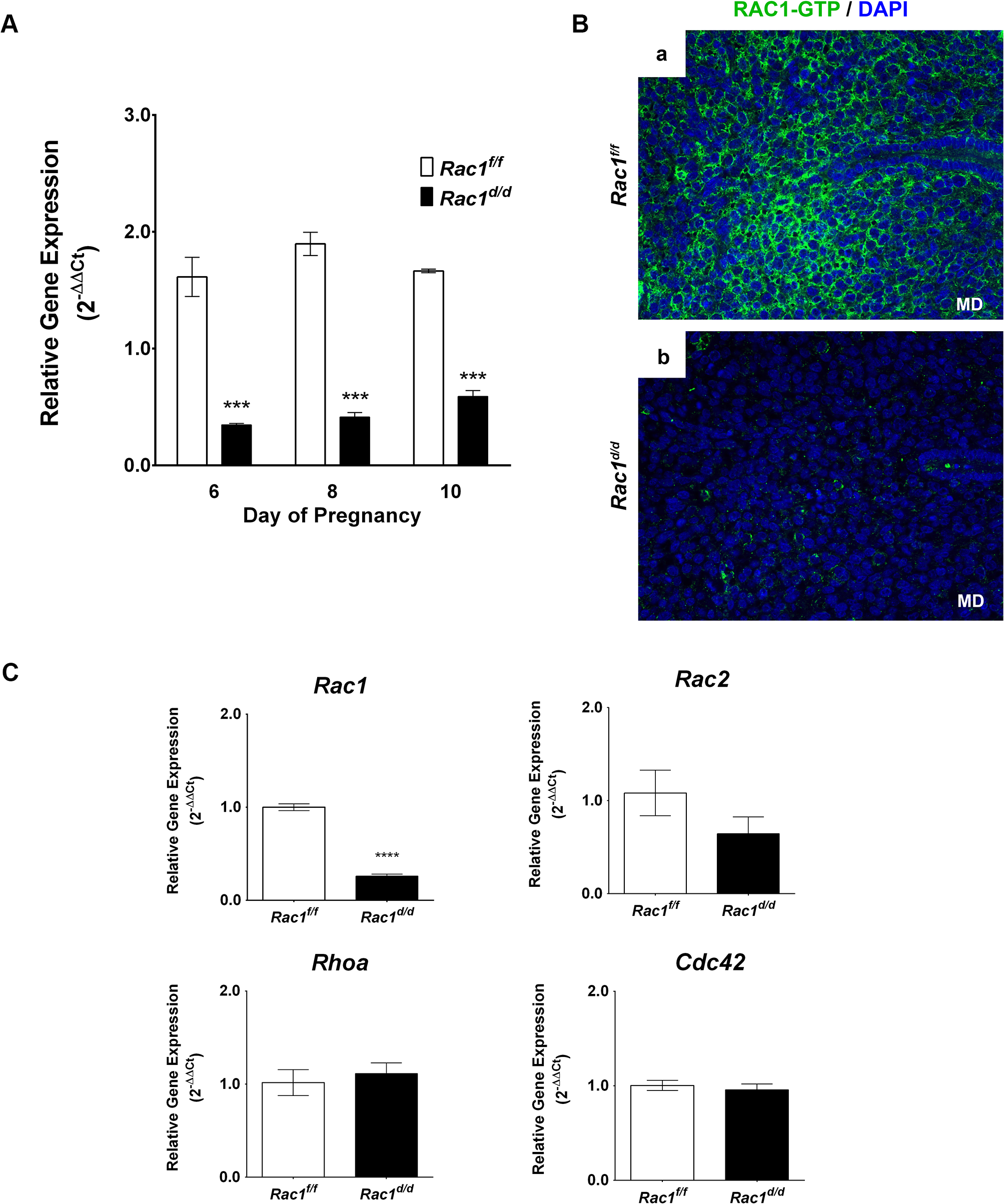 Loss of Rac1 expression in the uterus of <i>Rac1</i><sup><i>d/d</i></sup> mice.